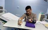 Вьетнам успешно выполнил операцию по пересадке руки от живого донора