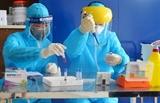 베트남 인도네시아에게 500개의 코로나바이러스 진단키트 기증
