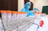Утром 22 февраля во Вьетнаме не зарегистрировано новых случаев COVID-19